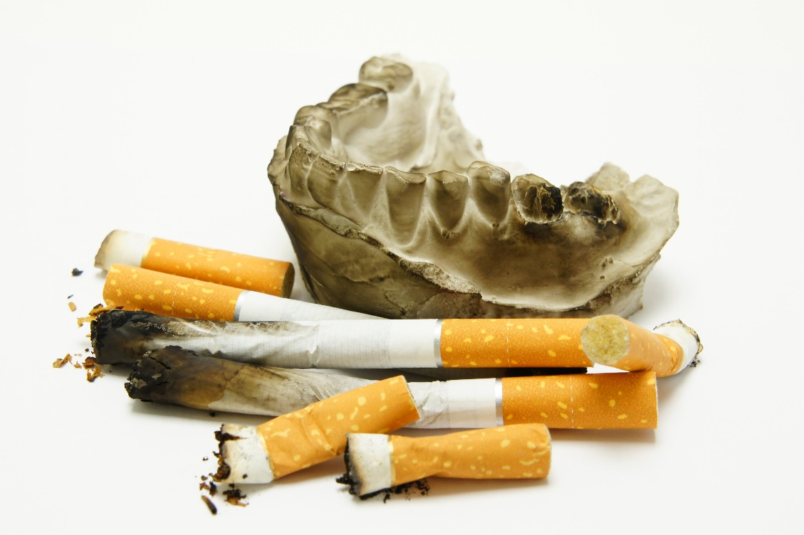 Cigarettes Deteriorating Teeth
