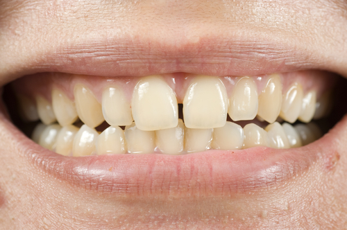 Age-Stained Teeth