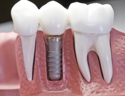 Dental Implants at The Aventura Dentists in FL